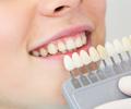 銀歯・歯の色を変えたい